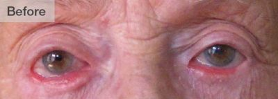 Eye ConditionArtboard 15@25x